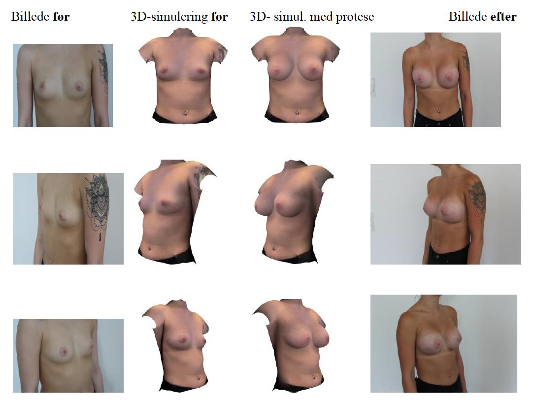 brystforstørrelse eget fedt ømme bryster amning